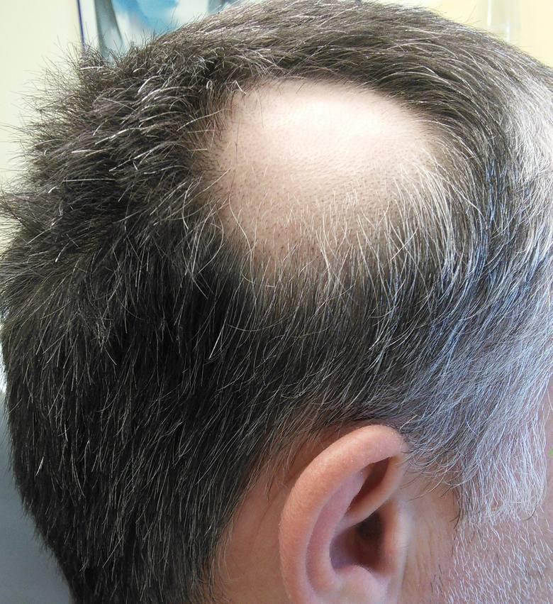 łupież wypadanie włosów przyczyny
