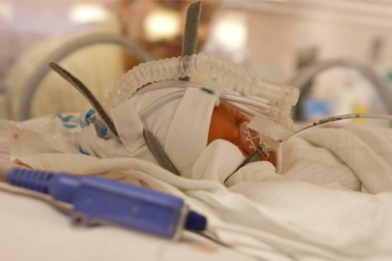 Jeśli urodzi się dziecko upośledzone, obarczone ciężką i nieuleczalną chorobą, która powstała w życiu płodowym lub podczas porodu, jego rodzice mają