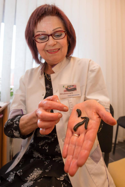 Irena Karczewska o leczeniu pijawką lekarską dowiedziała się w Niemczech