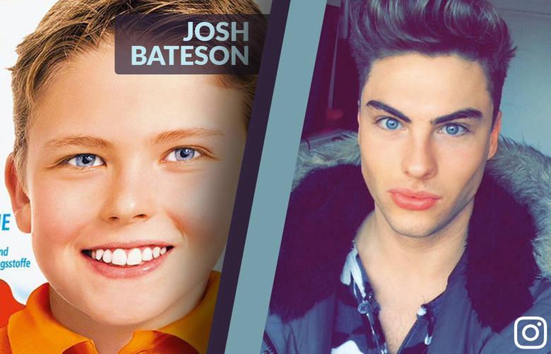 Dziecko z czekolady Kinder - JOSH BATESON kiedyś i dziś