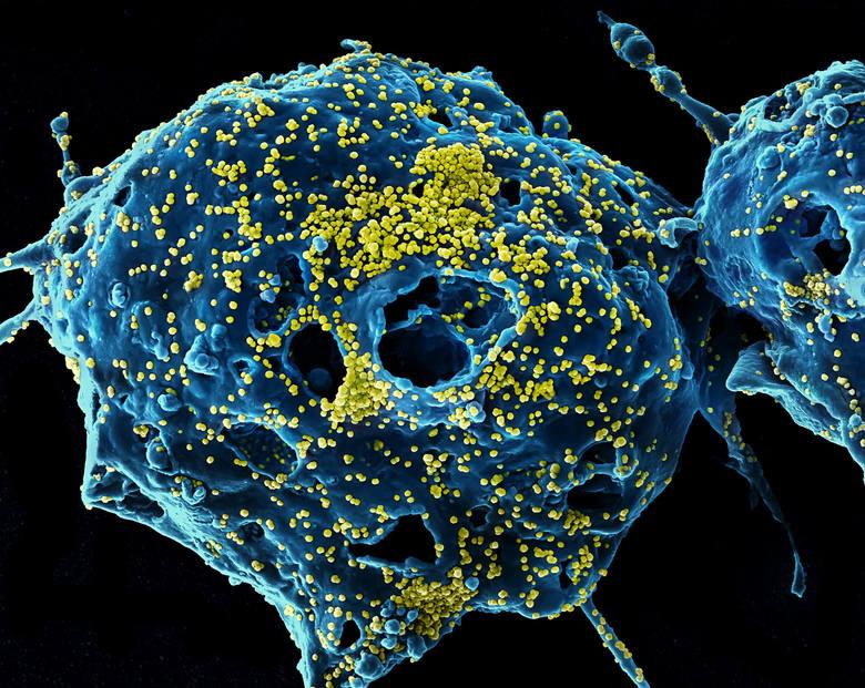 Koronawirus OC43 - zakaża ludzi i bydło. Wraz z ludzkim koronawirusem 229E i HCoV-NL63 (członkowie rodzaju Alphacoronavirus ) oraz Betacoronavirus HCoV-HKU1