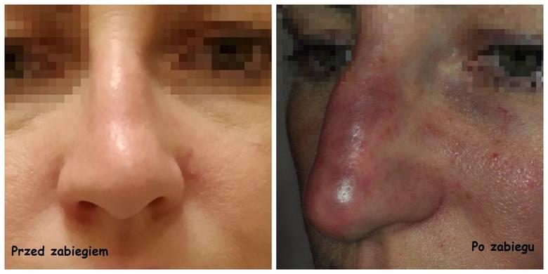 Tak wyglądał po zabiegu u kosmetolog nos pani Ewy (imię zmienione)