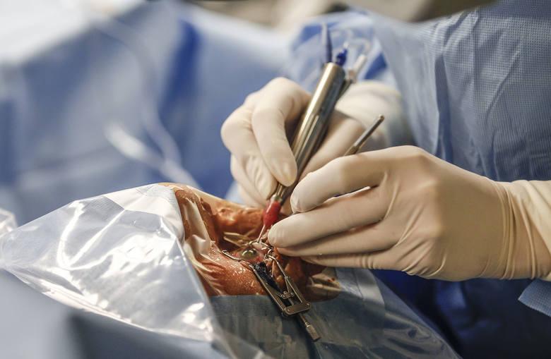 Od 1 kwietnia ma nie być kolejek na operacje zaćmy. Zniesione zostają limity i NFZ będzie płacił za wszystkie wykonane operacje