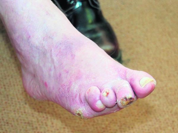 Zabiegi w komorze hipernarycznej mają uratować choremu prawą nogę, na której z powodu zaawansowanej cukrzycy tworzą się trudno gojące się rany.