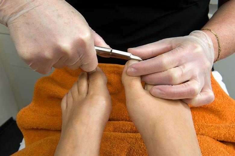 Skracając paznokcie dużych palców u stóp nie należy obcinać ich zbyt krótko, zaokrąglać nadmiernie brzegów, ale też nie zostawiać wystających ostrych