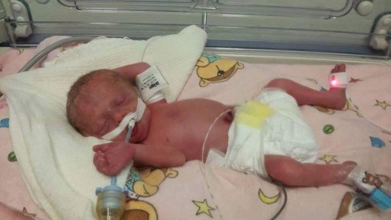 Franuś tuż po porodzie był tak malutki, że jego główka rozmiarem przypominała mandarynkę