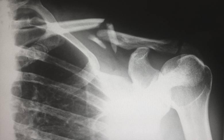 <strong>RTG</strong><br /> Badanie RTG wykonuje się nie tylko przy podejrzeniu złamań. Dzięki zdjęciom RTG lekarz jest w stanie zdiagnozować szereg schorzeń lub urazów, choroby serca, wadę postawy, a nawet choroby serca czy układu pokarmowego. Ceny badania RTG będą się różnić w zależności od miejsca...