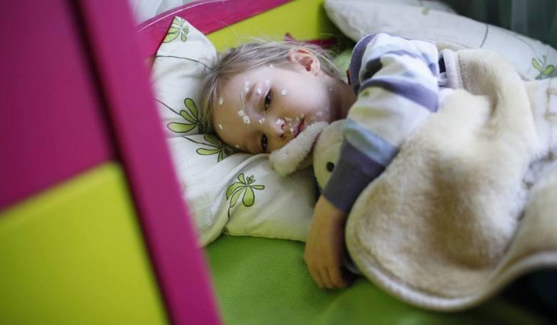 Ospa party - to rodzaj przyjęcia, podczas którego dzieci zdrowe przyprowadzane są do chorych, by te mogły zarazić je wirusem ospy. Rodzice celowo zarażają