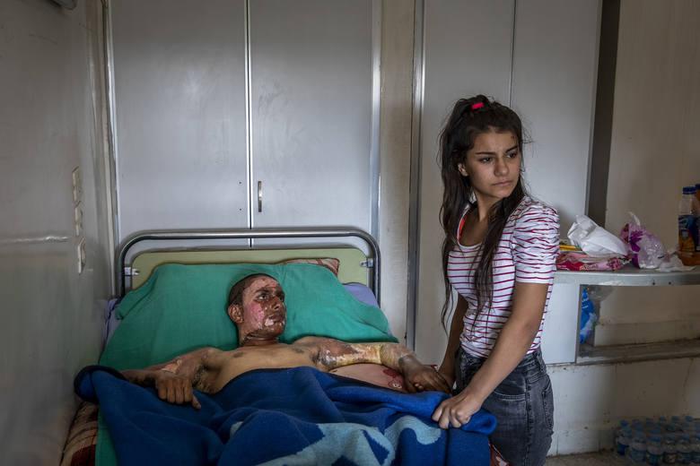 Nominowane zdjęcie do zdjęcia roku 2020Injured Kurdish Fighter Receives Hospital Visit Fot. Ivor Prickett, Ireland, for The New York Times