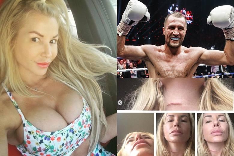 Siergiej Kowalow miał uderzyć swoją partnerkę Jamie Frontz, gdy ta nie miała chęci na seks. Do zdarzenia doszło ponoć w lutym 2018 r. Były bokserski