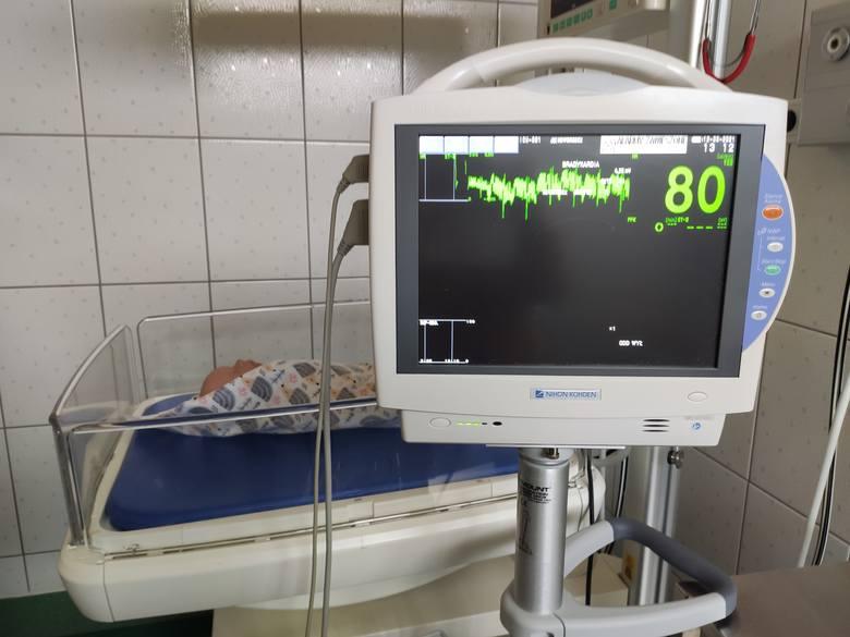 Sala porodowa - kardiomonitor, stanowisko do resuscytacji noworodka