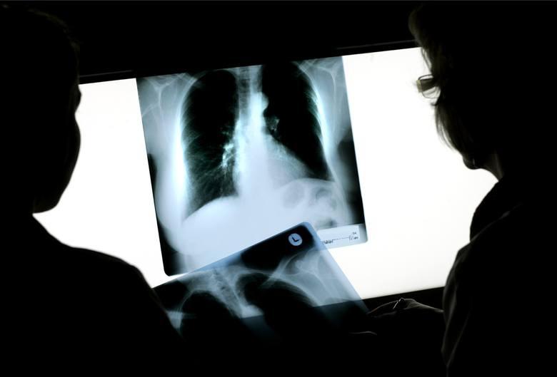 Najczęściej wymieniane, potencjalne skutki choroby to zwłóknienie płuc, choroby naczyń płucnych i ogólnoustrojowych, rozstrzenie oskrzeli, chroniczne
