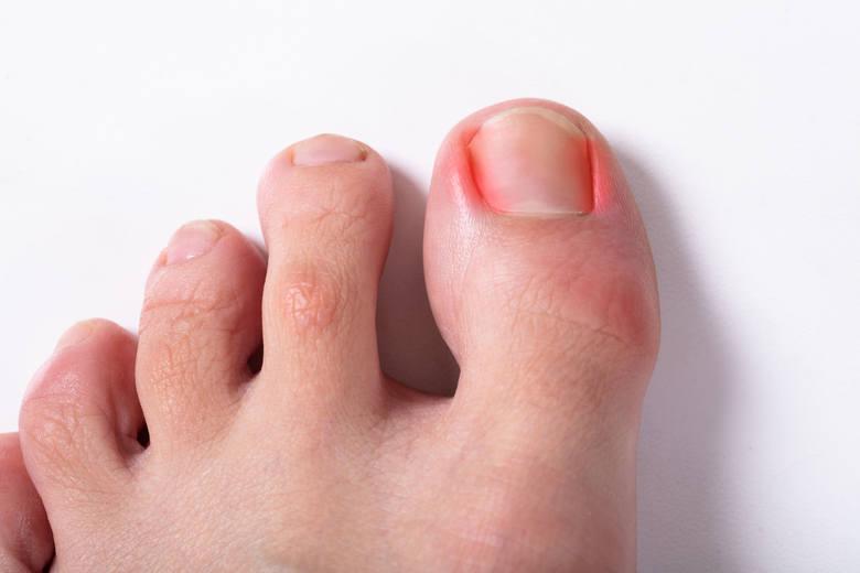 Zastrzałem nazywa się bakteryjny stan zapalny zlokalizowany tuż przy paznokciu u palców dłoni, rzadziej u stóp. Pulsujący ból obrzękniętego paliczka,