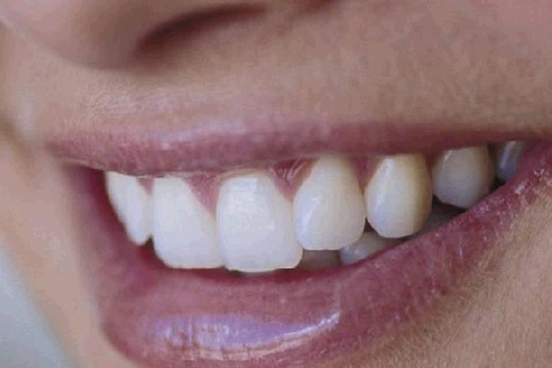 Zanim zaczniemy nawet myśleć o udoskonalaniu uśmiechu, pierwszym, zresztą obowiązkowym etapem, który trzeba pokonać jest leczenie.
