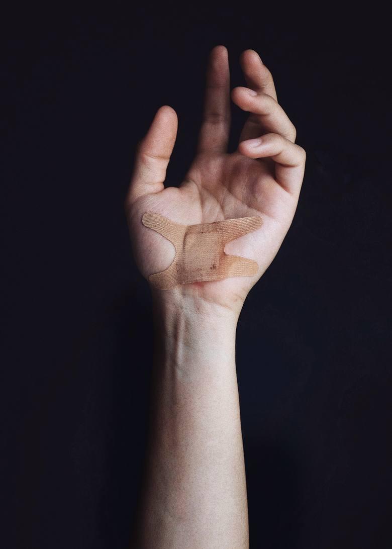 Blizny na dłoniach mogą zmniejszać się szybciej niż te zlokalizowane w innych częściach ciała, ponieważ ich skóra ulega szybszej regeneracji. Tak jak