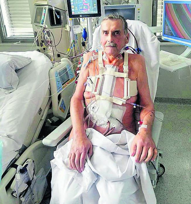 Miesiąc po operacji pacjent ze sztucznym sercem czuje się dobrze