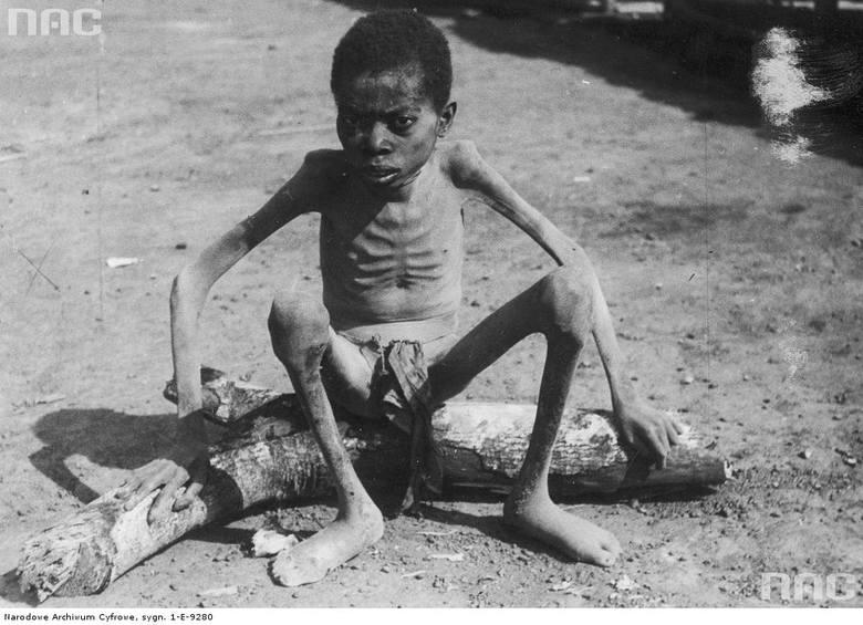 """Człowiek cierpiący na śpiączkę afrykańska (trypanosomatoza afrykańska) w ostatnim stadium choroby. <font color=""""blue""""><a href="""" http://www.audiovis.nac.gov.pl/obraz/232224/a777408efb88cd622ad73eb1a6873fbc/""""><b>Zobacz zdjęcie w zbiorach NAC</b></a> </font>"""