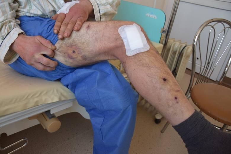 Oprawcy męczyli Wojtka przez kilka tygodni. Miał liczne siniaki, szramę na głowie. Do tego dziury na nogach i rękach po postrzałach śrutowych. - Oni mnie doprowadzili do takiego stanu, że bałem się odejść - mówi