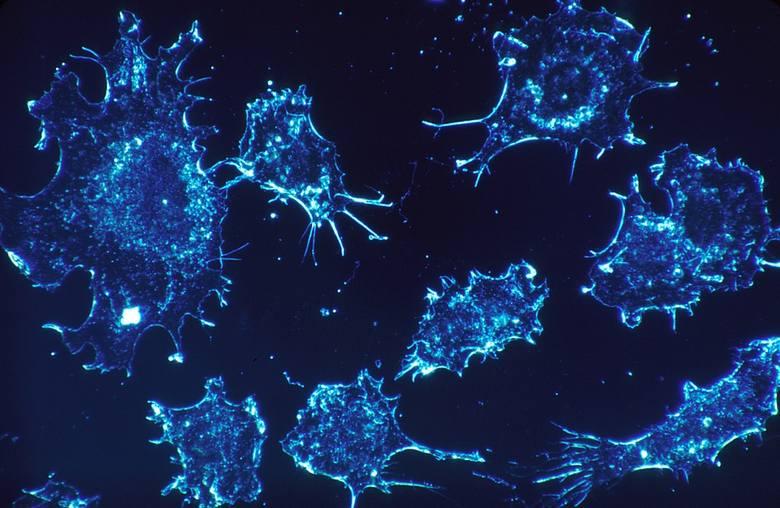 Nowotworem nazywamy nieprawidłową tkankę, która charakteryzuje się nadmiernym i niekontrolowanym rozrostem. Tkanka nowotworowa jest niepodporządkowana