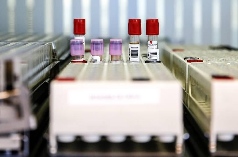 Do czwartku 14 maja w Lubuskiem zrobiono 8150 testów.
