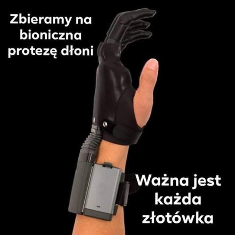 Proteza dłoni kosztuje 197 tys. zł.