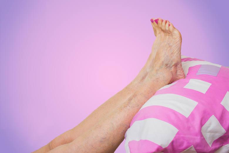 """Silne napuchnięcie kończyn dolnych i nieprzyjemne uczucie chodzenia """"mrówek"""" po nogach to objawy mogące wskazywać na miażdżycę tętnic kończyn dolnych."""