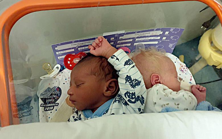 Bliźnięta o różnych kolorach skóry urodziły się w szpitalu w Łodzi.