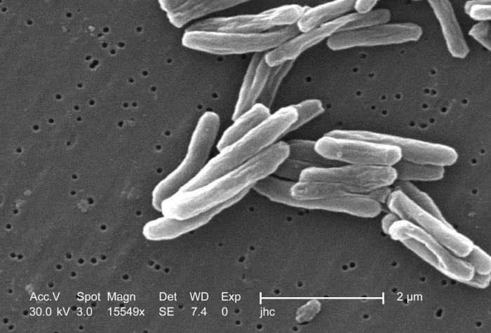 Prątek gruźlicyPrątek gruźlicy (na zdjęciu) przenosi się drogą kropelkową i jest silnie zakaźny. Choroba objawia się bólem w klatce piersiowej, pluciem