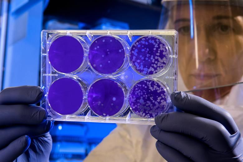 Koronawirus SARS-CoV-2  (początkowo 2019-nCoV, zidentyfikowany w Wuhanie) - jest następcą SARS-CoV-1. Badania epidemiologiczne szacują, że każda infekcja