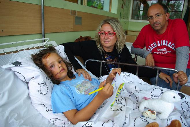 Noemi Fazzini została pogryziona przez amstaffy w 2009 r.