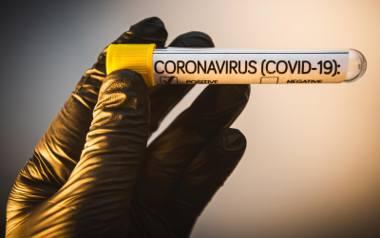 Dr hab. Ewa Augustynowicz opowiada o szczepieniach, a także potencjalnej szczepionce na koronawirusa.