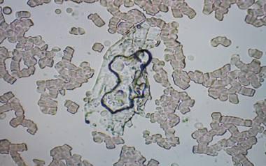 Spełnia się czarna wizja mikrobiologów. Groźna bakteria atakuje region!