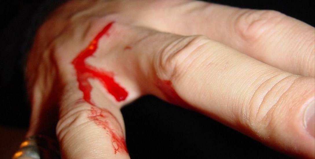 W Bielsku Podlaskim przykuli młodego mężczyznę do drzewa i pobili pałką