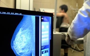 Kobiety w wieku 50-69 lat mogą wykonać bezpłatnie mammografię raz na dwa lata