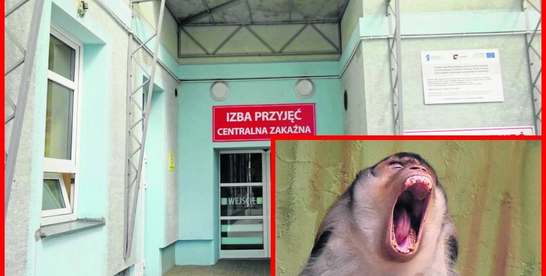 Małpa dotkliwie pogryzła łodziankę! Pacjentka zgłosiła się do szpitala im. Biegańskiego