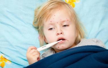 Według doktora, najskuteczniejszym sposobem na uniknięcie ospy wietrznej jest szczepionka ochronna, która na przestrzeni lat spowodowała znaczny spadek