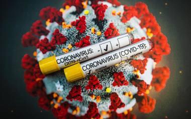 Widzę Łódź: Koronawirus a wścieklizna [FELIETON]