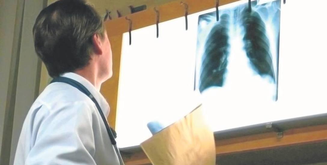 Wczesna diagnostyka nowotworów to podstawa skutecznego leczenia