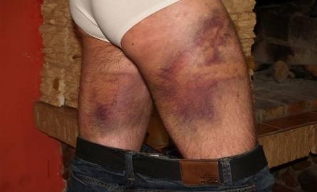 Kadzidło. Dwaj młodzi mężczyźni oskarżają policjantów o brutalne pobicie (zdjęcia)