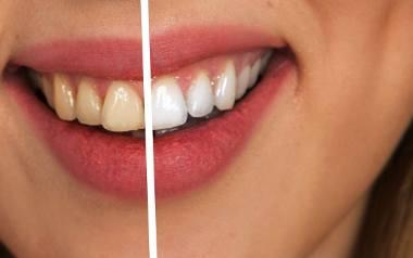 Wybielanie zębów w domu może być równie skuteczne, jak w gabinecie stomatologicznym. Wystarczą odpowiednie kosmetyki, na których nie warto oszczędza