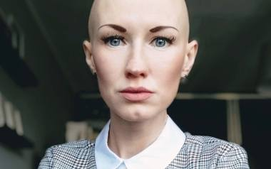 Magdalena Schatt-Skotak cierpi na alopecję, czyli łysienie całkowite. Przez wiele lat mówienie o chorobie było dla niej trudne. Teraz łamie tabu i wychodzi