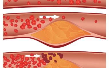 Odkładający się cholesterol zwęża naczynia krwionośne, co w efekcie prowadzi do zawału lub udaru.