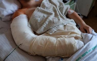 Złamanie ręki wymagało założenia płytki tytanowej i przesunięcia nerwu podczas operacji