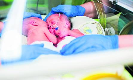 Zapewne pierwsze takie rodzinne zdjęcie, czyli połowa urodzonych w Rudzie czworaczków w  jednym inkubatorze
