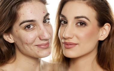Makijaż podkreślił naturalne piękno i sprawił, że te kobiety wyglądają jak gwiazdy Hollywood!Zobacz niesamowite metamorfozy!