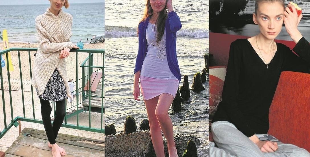 """Karolina cierpi na anoreksję: """"Boję się, że mogę się nie obudzić"""" [WIDEO, ZDJĘCIA]"""
