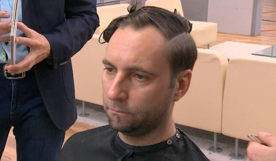 Jak Fryzurą Zatuszować Oznaki łysienia Ntopl