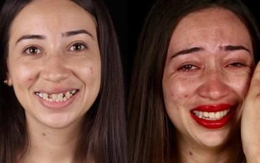 Pomagać ludziom można na różne sposoby. Jednym z nich jest dawanie uśmiechu - i to dosłownie! Brazylijski dentysta Felipe Rossi podróżuje po świecie