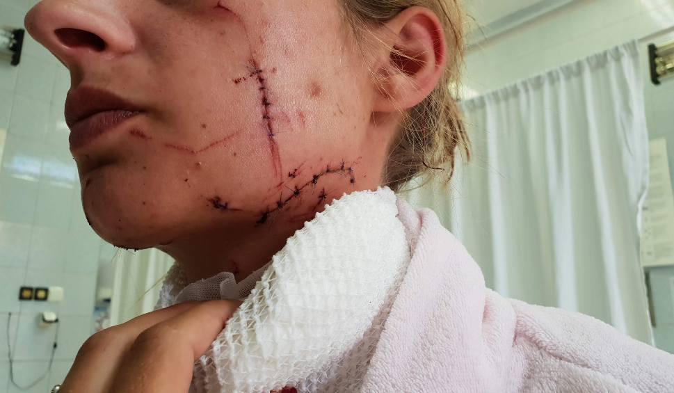 Film do artykułu: Mieszkaniec Strzelec Opolskich pociął żonie twarz i szyję, żeby nie związała się z nikim innym. Usłyszał zarzut usiłowania zabójstwa