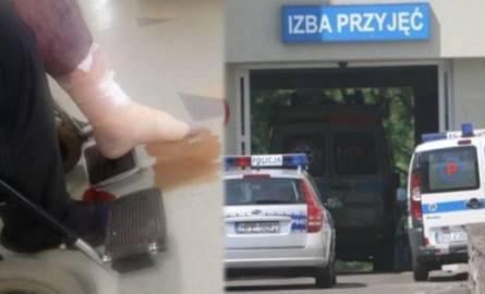 Z bolącej, sinej nogi 39-letniego mężczyzny sączyła się krew z ropą
